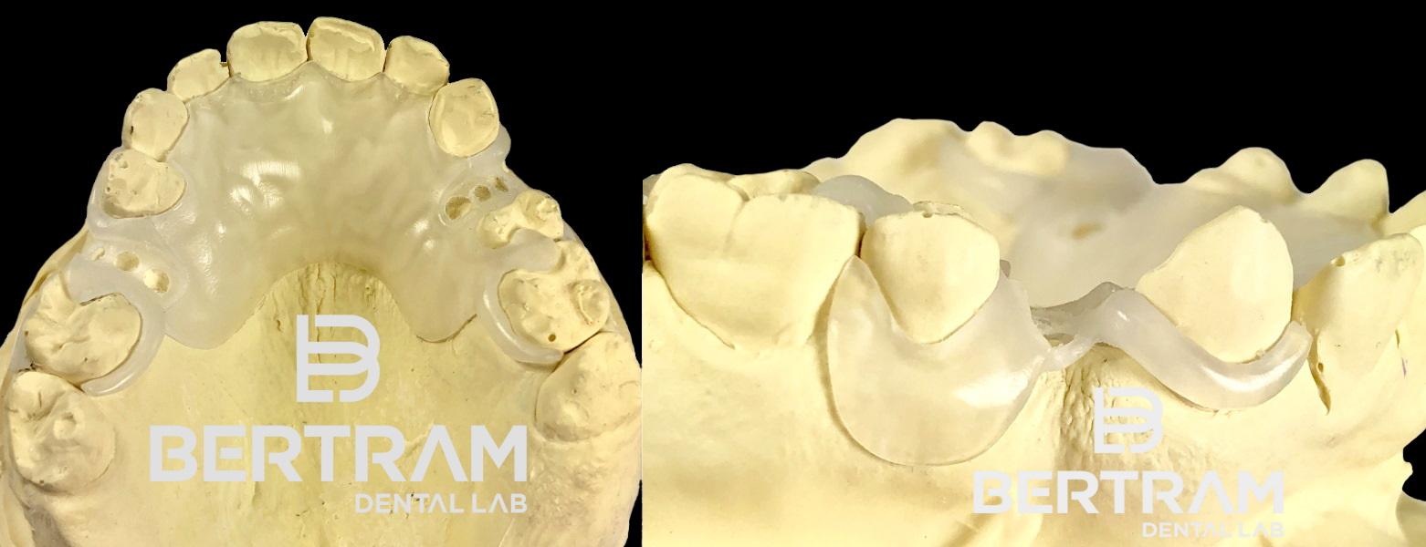 Bertram Dental Lab